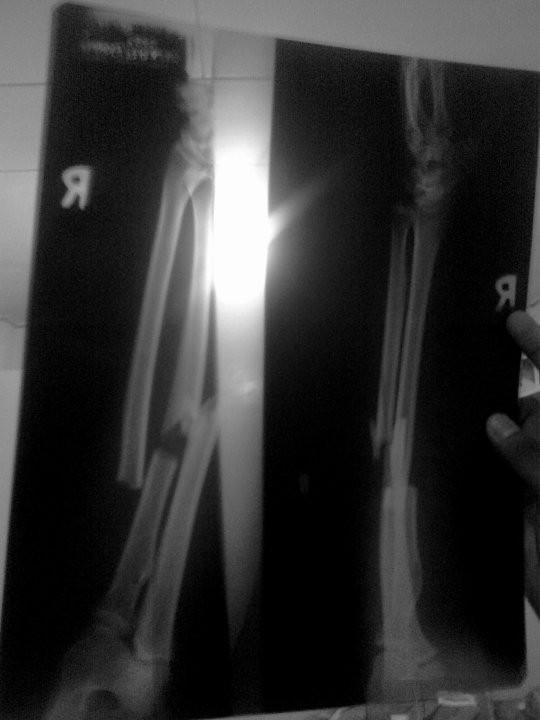 X-Ray Horray!