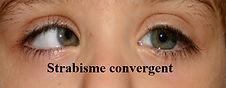 strabisme-convergent.jpg