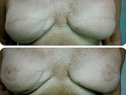 breast-areola-treatments