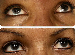 permanent-cosmetics-eyelids