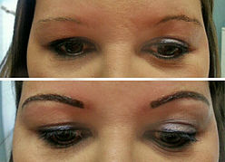 before-afters-brows