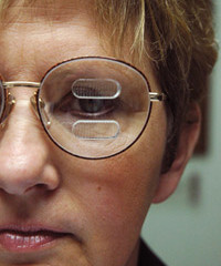 משקפי Eli Peli -  פתרון המשפר שדה ראייה לסובלים מהמיאנופסיה
