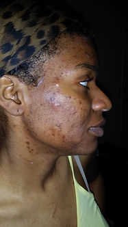 acne before