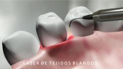 LASER TEJIDOS BLANDOS.2jpg