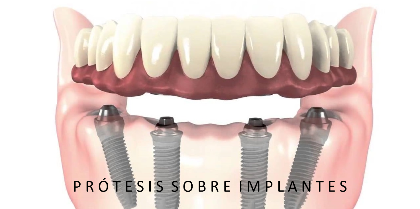 protesis fija sobre implante2