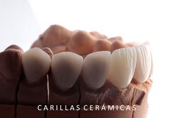 carillas_cerámicas2