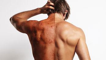 dmk-acné.jpg