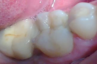 החלפת סתימה ישנה שחורה לשיחזור בצבע השן + גילוף מיוחד של שן