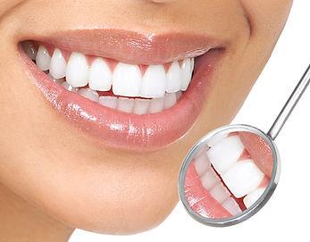 אבחון שיניים חינם
