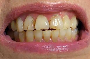 ציפוי חרסינה למינייט ל-6 שיניים קדמיות