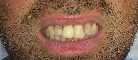 שחזור שיניים קדמיות עם כתר זרקוניה