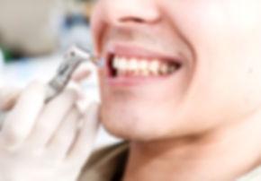 שיננית ובריאות הפה