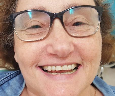 חיוך לאחר שחזור קומפוזיט