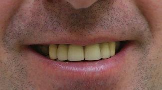 השתלת שיניים פנימיות