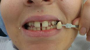 השלמת שיניים מקומפוזיט בטיפול מהיר אחד ללא כאבים וללא זריקות