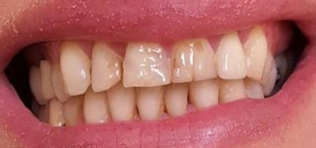 חיוך לפני ואחרי טיפול