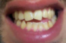 ציפוי חרסינה למינייט ל-2 שיניים קדמיות