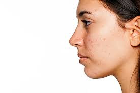 Hormones and Acne Breakouts