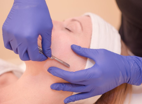 What? How? Why? Dermaplaning Explained!
