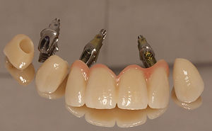 Perfect Smile| Implant stock abutment
