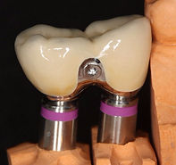 Perfect Smile| implant abutment