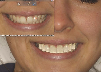 Perfect Smile| RealView, smile makeover