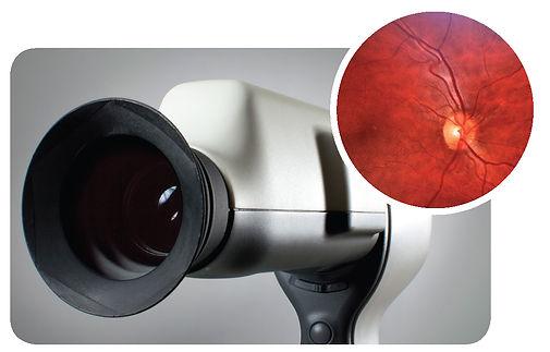 retinal  module.jpg