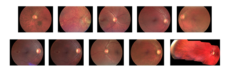 Volk Pictor Plus Strip Fundus photos.png
