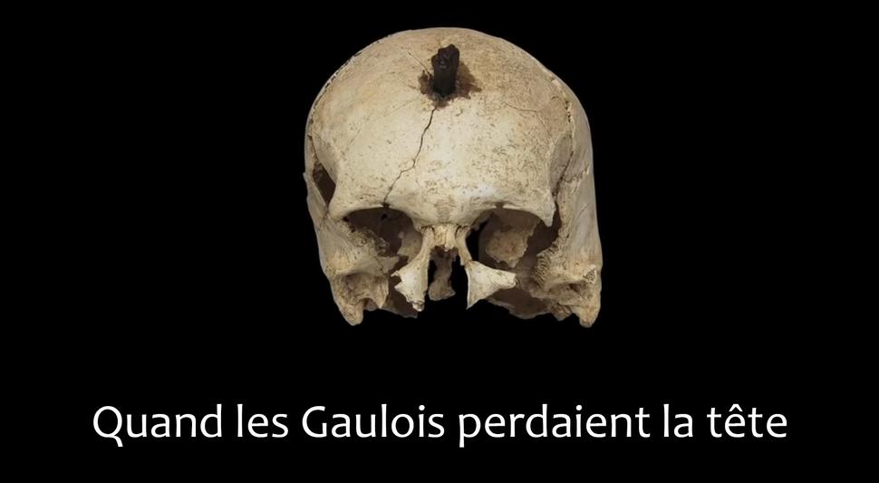 Quand les Gaulois perdaient la tête