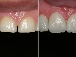 Consigo Corrigir Posição e Inclinação dos Dentes com Lente de Contato Dental?