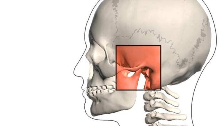 Lente de Contato Dental e Implante Dental em Belo Horizonte