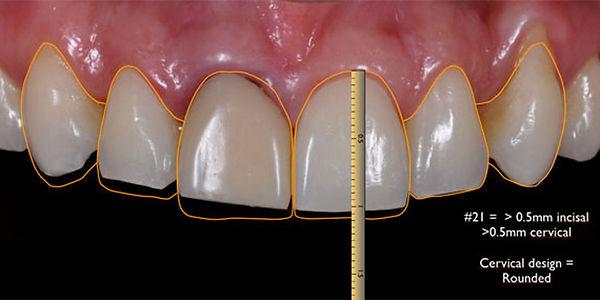 DSD - Teste Drive do Sorriso - Planejamento Digital do Sorriso - Lente de Contato Dental e Facetas de Porcelana em BH - Neolife Clinica Odontologica