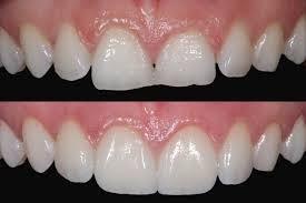 Alteração de posição e formato dos Dentes com uso de Faceta de Porcelana