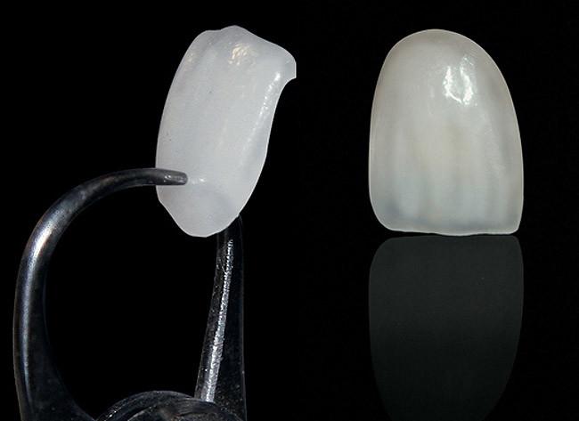 Lente de Contato Dental - Observe a fina espessura.