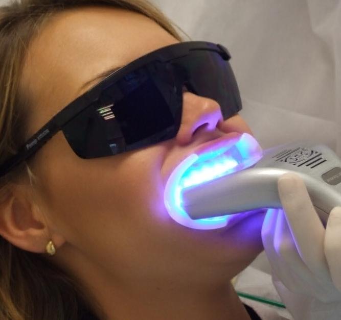 Clareamento A Laser Fotoativado