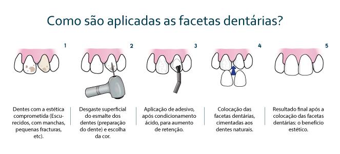 Etapas de Confecção da Faceta Dental.