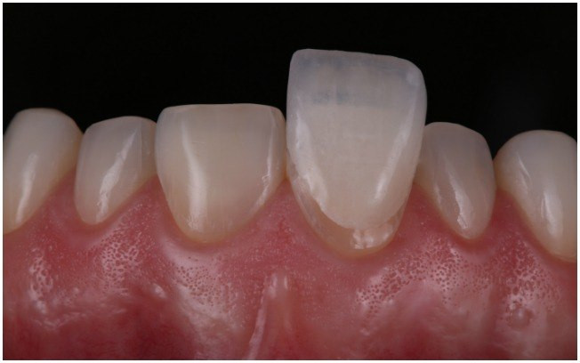 Aplicação de uma Lente de Contato Dental