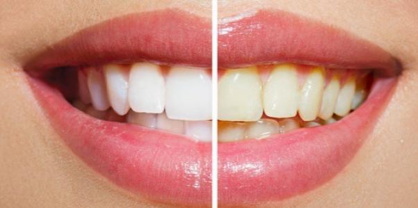 Simulação do Resultado do Clareamento Dental