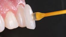 Guia Completo sobre a Lente de Contato Dental e a Faceta de Porcelana