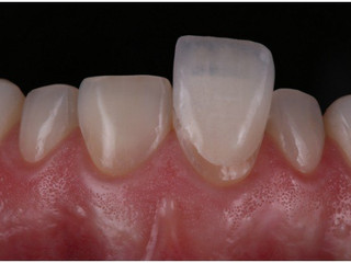O que é Lente de Contato Dental