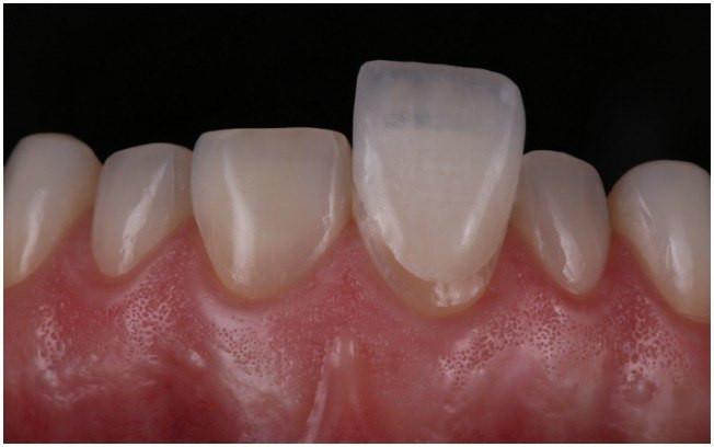 Lente de Contato sendo aplicada ao dente, mudando forma, cor e tamanho do dente.