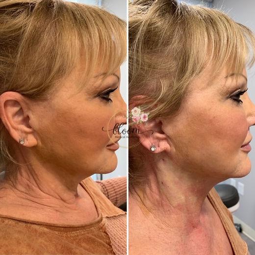 Non-surgical neck lift