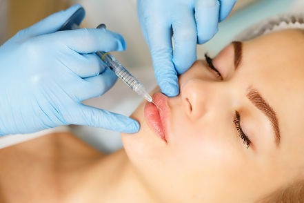 Injections of the lips. Correction form