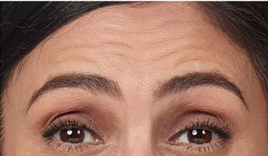 Forehead wrinkles before photo