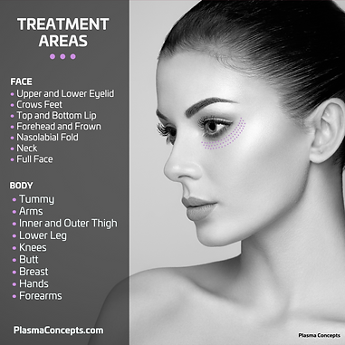 Areas-of-treatment-2-2-1024x1024.png