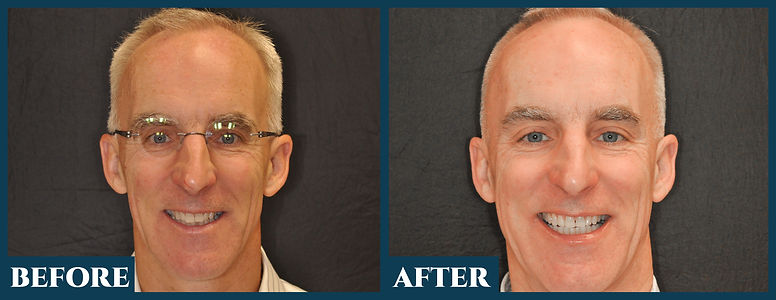 Before & After8.jpg