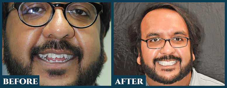 Before & After113.jpg
