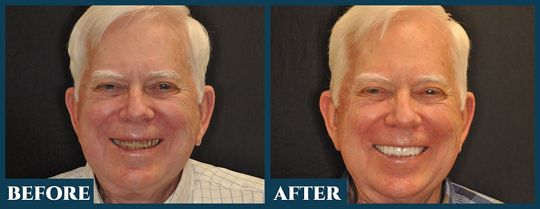 Before & After11.jpg