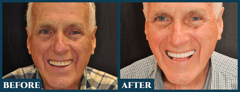 Before & After9.jpg