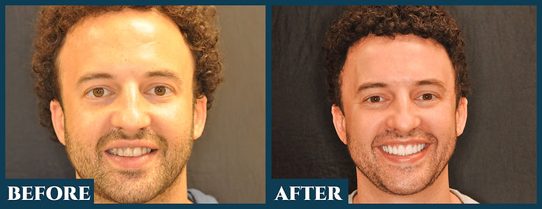 Before & After6.jpg